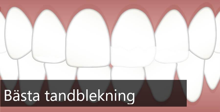 bästa tandblekning